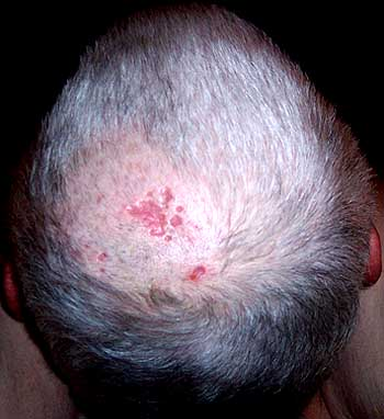 shingles-on-scalp